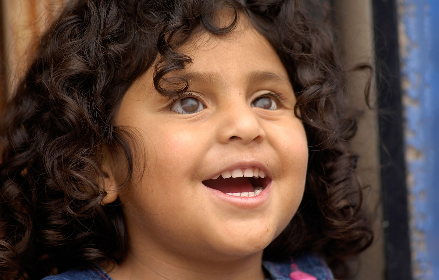 Compassion helps a blind girl from Ecuador get prosthetic eyes