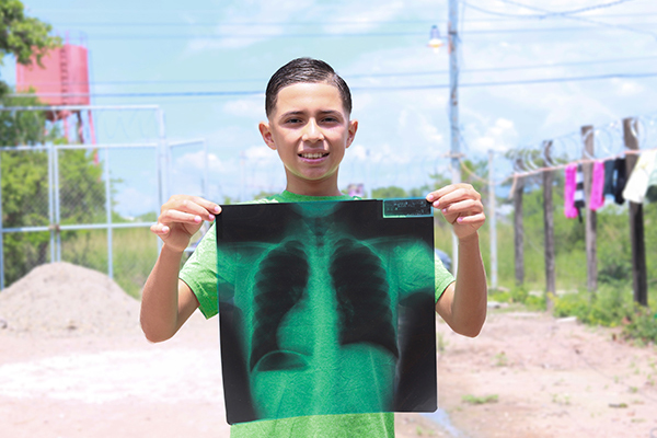 Rafael holds his x-ray