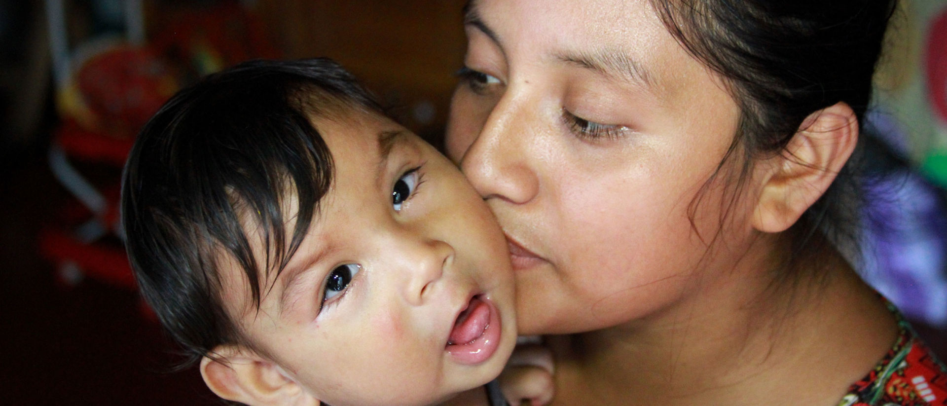Mother kisses her son infected with the Zika virus