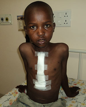 A young Kenyan boy after heart surgery.